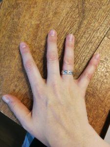 ...als auch meine rechte Hand sehr gut aus. Das war vor der Therapie und ohne Gelnägel anders.